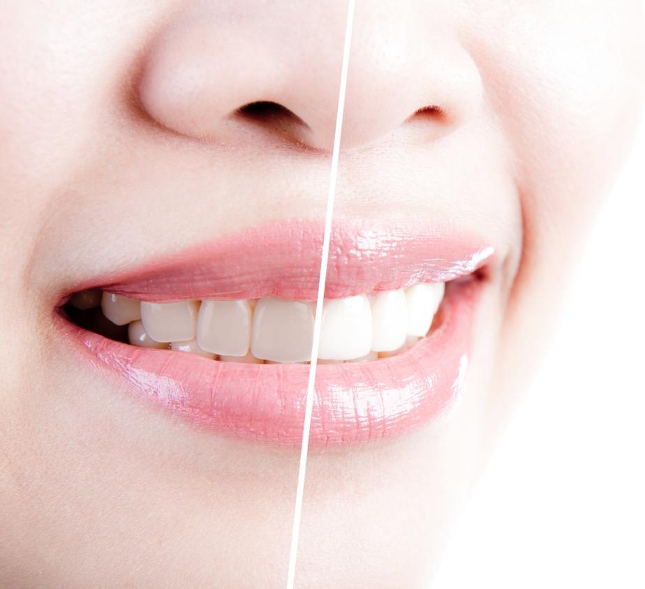 whi teeth