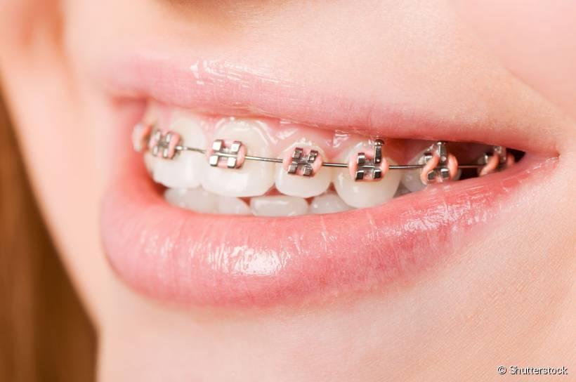 2462-o-aparelho-fixo-move-os-dentes-em-slider_medias-1