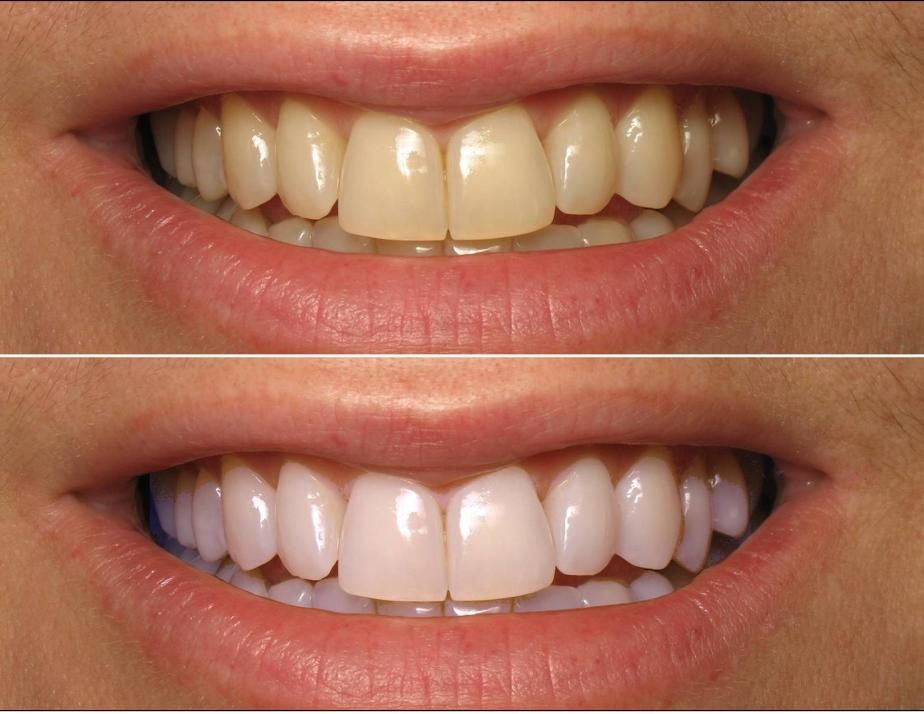 before-and-after-whiteing2