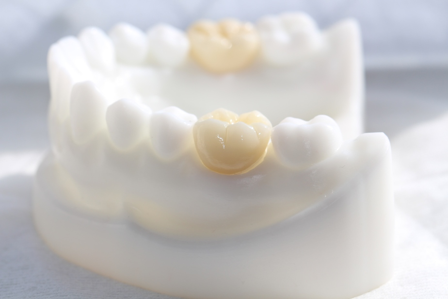 dental crowns zirconia