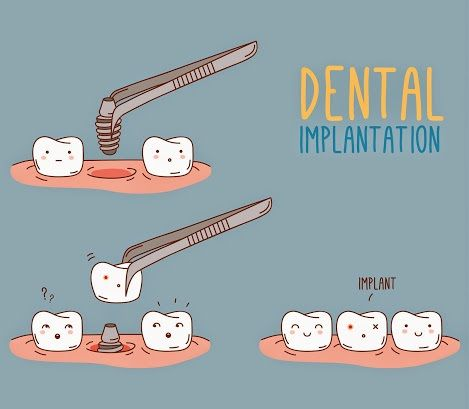 dental implant cartoon -urja dental