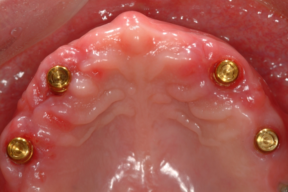 dental implant doctors
