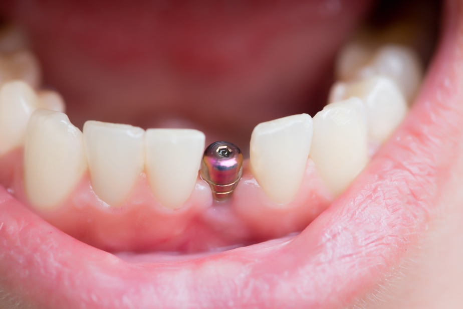 dentist that specializes in implants