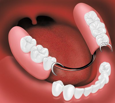 best partial dentures