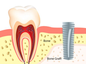 bone-graft-to-support-dental-implant-300x225